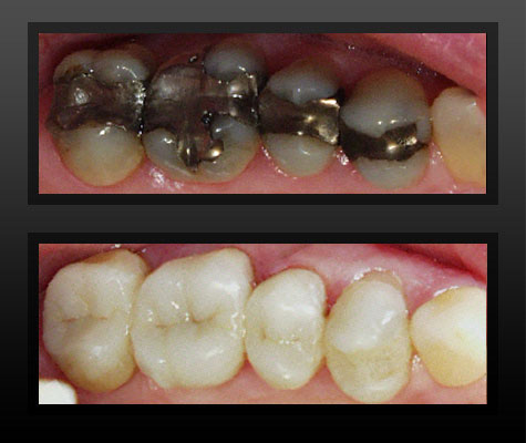 Tooth Colored Fillings in Rochester, MI