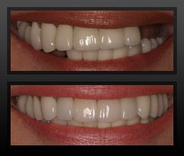 Dental Implants - Karen