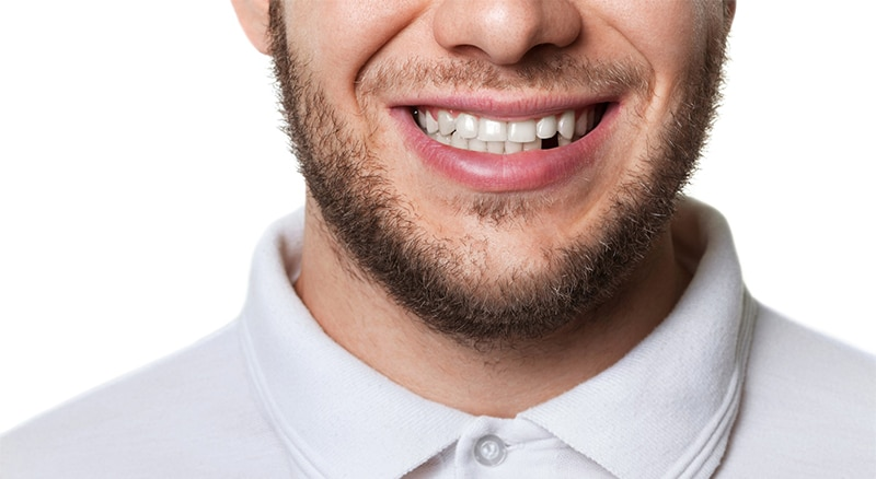 Get your missing tooth replaced quickly