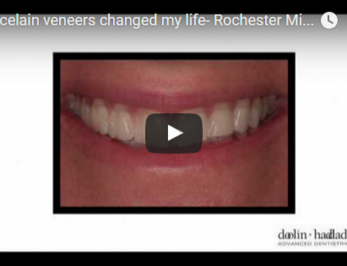Porcelain veneers changed my life – Rochester Michigan