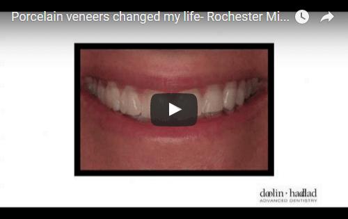 Porcelain veneers changed my life