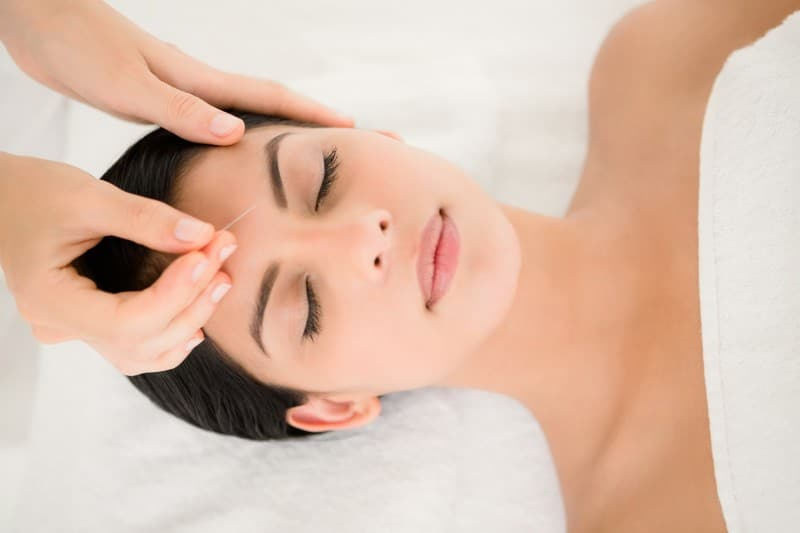 Can acupuncture cure headaches?