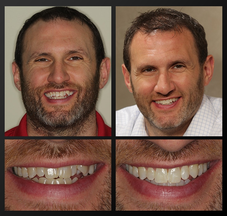 Invisalign teeth correction in Rochester