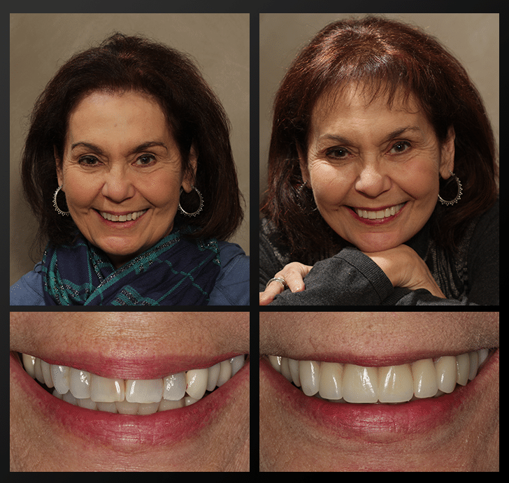 Mary Ann - Patient Before & After