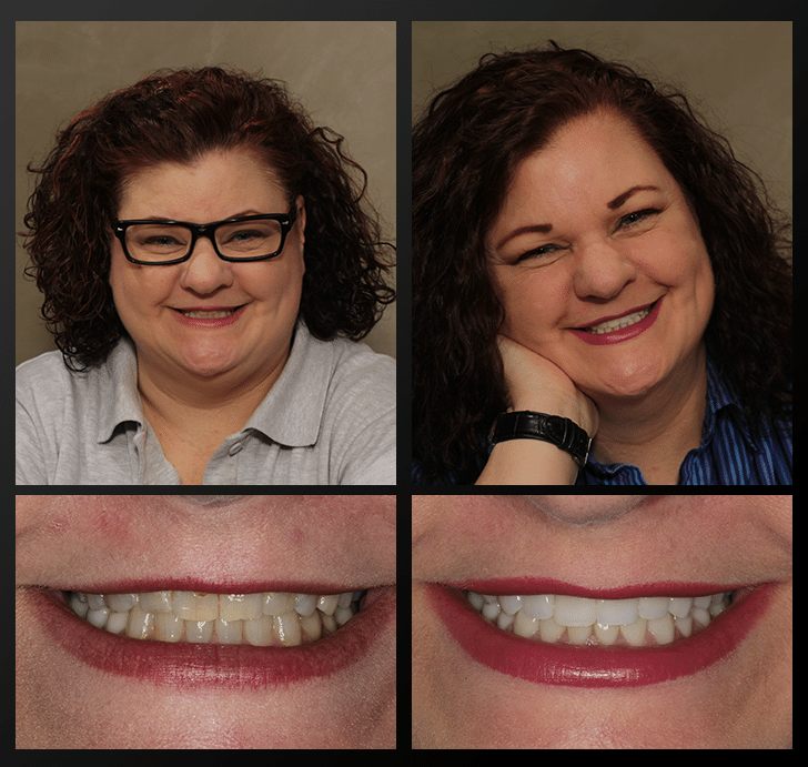 Tammy - Dentist Patient Before & After