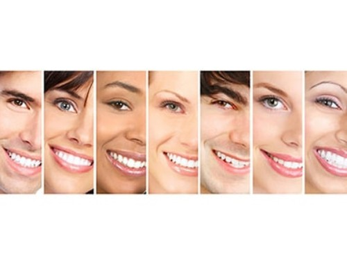 Teeth whitening processes can have oral health benefits