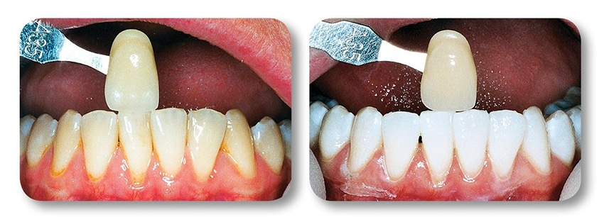 Close up of patient's lower teeth before and after teeth whitening