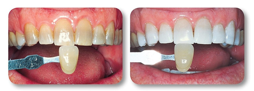 Close up of patient's upper teeth before and after teeth whitening