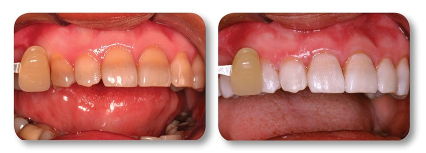 Patient's upper teeth before and after teeth whitening