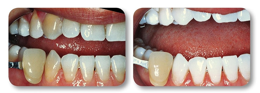 Patient's lower teeth before and after teeth whitening