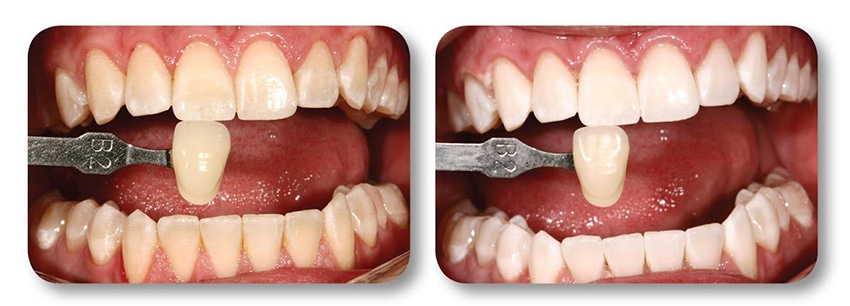 Patient's smile before and after teeth whitening