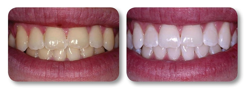Patient's teeth before and after teeth whitening
