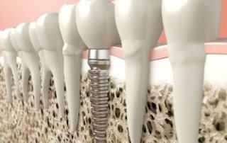 Complex Dental Implant Cases Call for Experience and Training