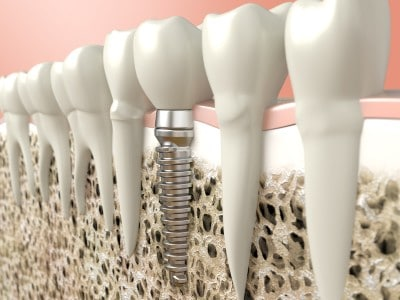 A depiction of a dental implant in the mouth