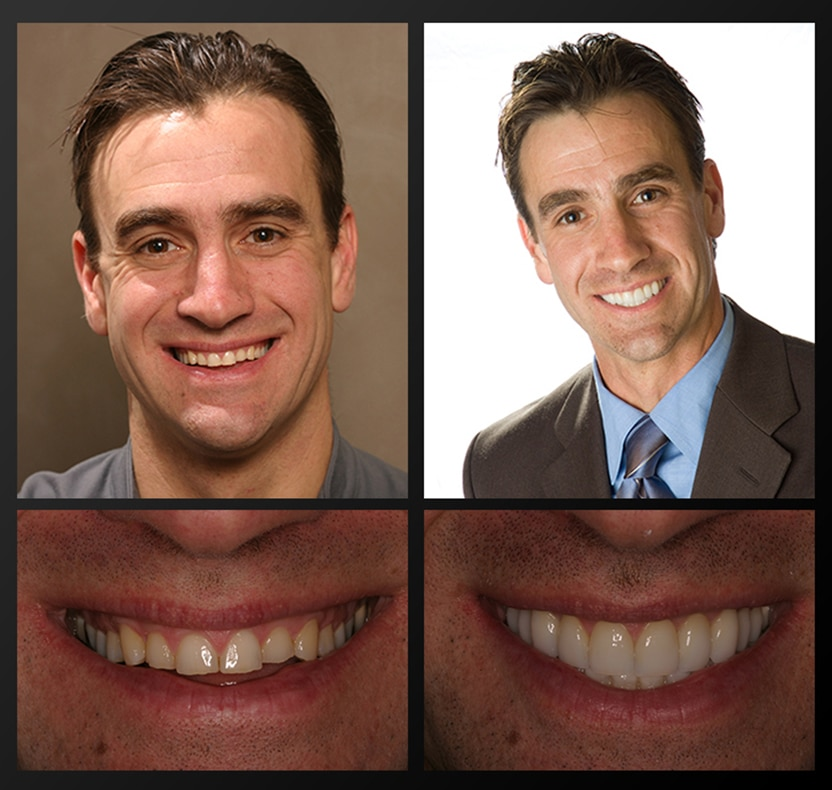 A actual before and after of a patient of Rochester Advanced Dentistry