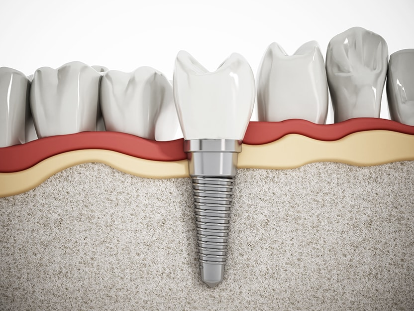 You Must Get the Final Crown on Implant | Rochester Dentist