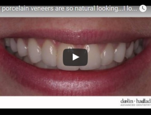 My Porcelain veneers are so natural looking, I love them.