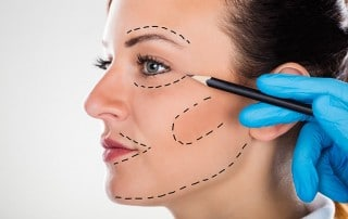 Surgeon Drawing Correction Lines On Young Woman Face for a face lift - which will leaves scars. A Non-surgical facelift will offer the lift but none of the scars