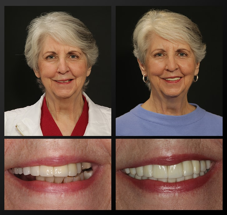 Sylvia's portrait and smile close up before and after dental treatment
