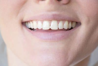 closeup of a female's smile with chipped teeth